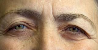 Ekzém očních víček
